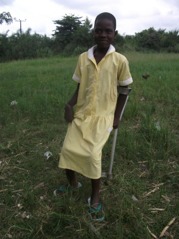 a little gir suffering from Buruli Ulcer in the Ga South District